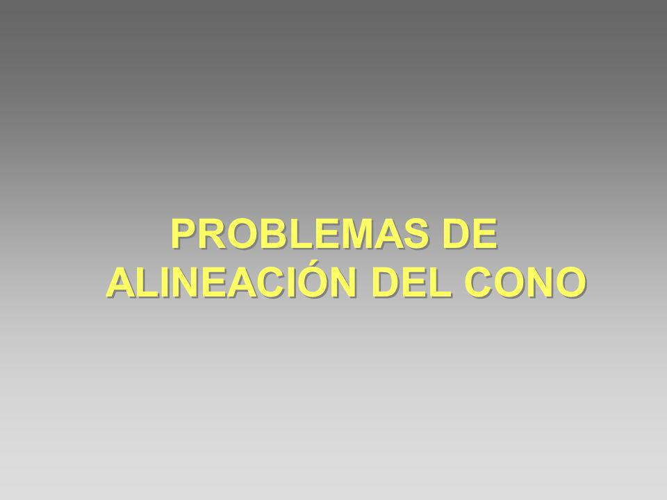 PROBLEMAS DE ALINEACIÓN DEL CONO