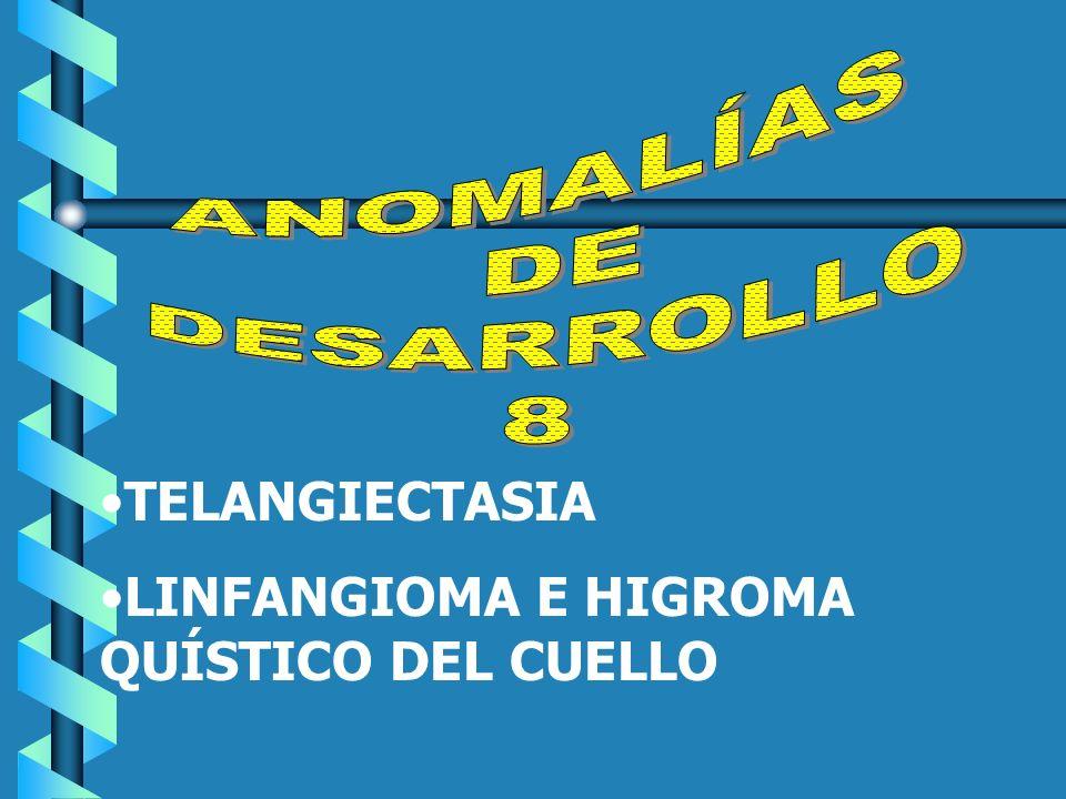 ANOMALÍAS DE DESARROLLO 8 TELANGIECTASIA