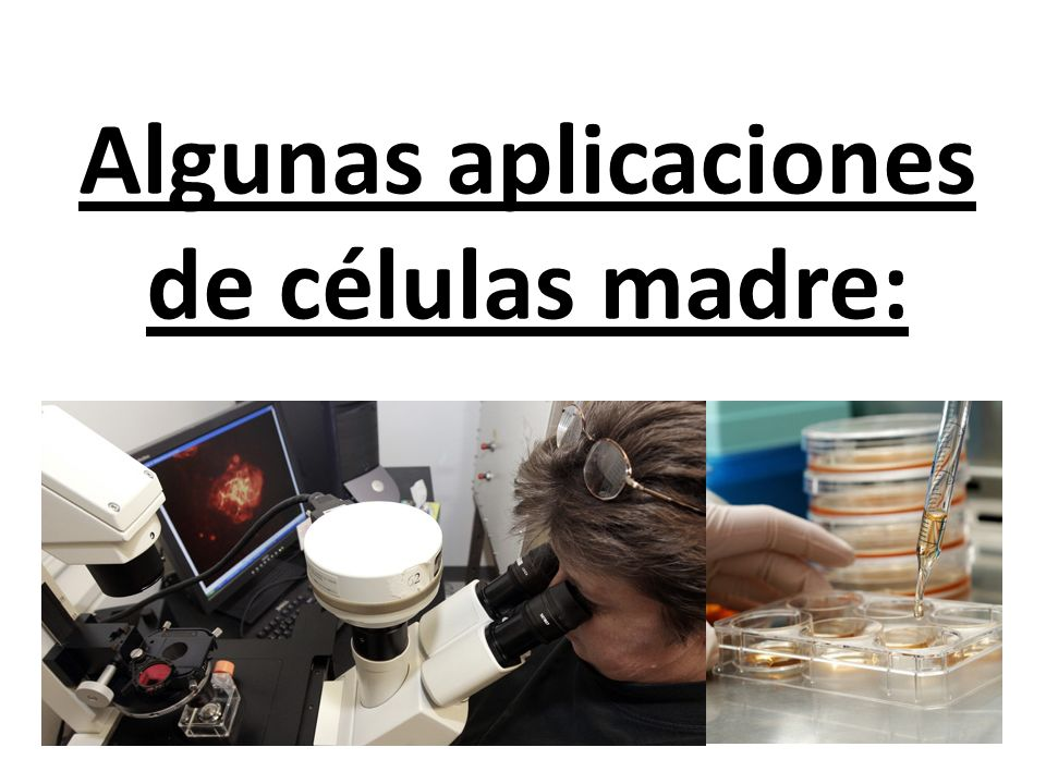 Algunas aplicaciones de células madre: