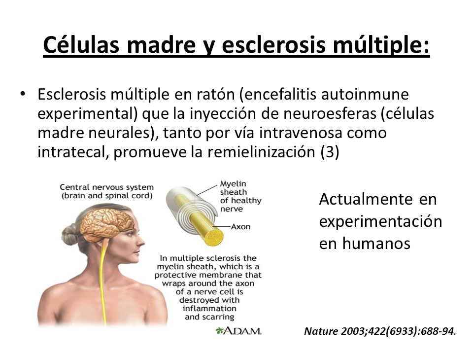 Células madre y esclerosis múltiple: