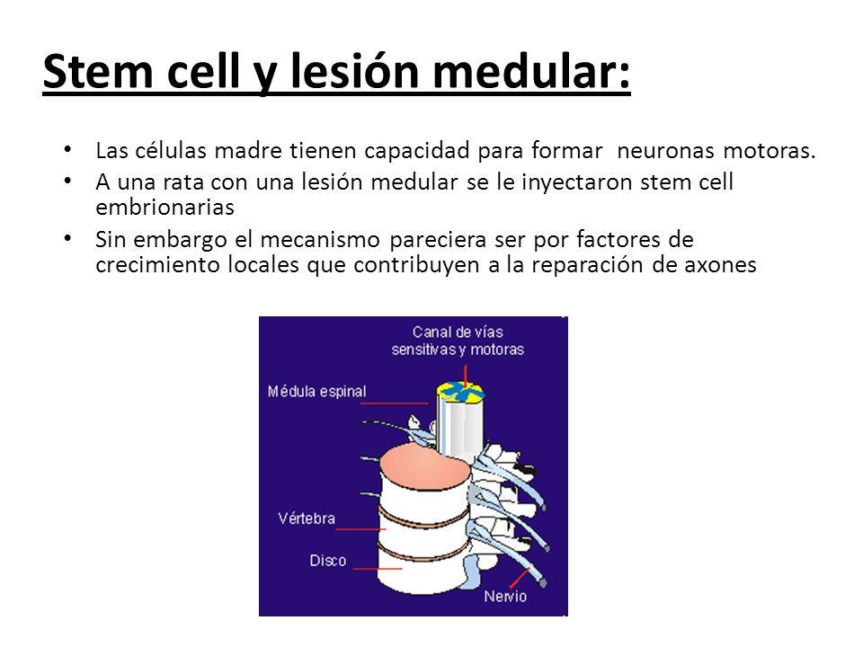 Stem cell y lesión medular:
