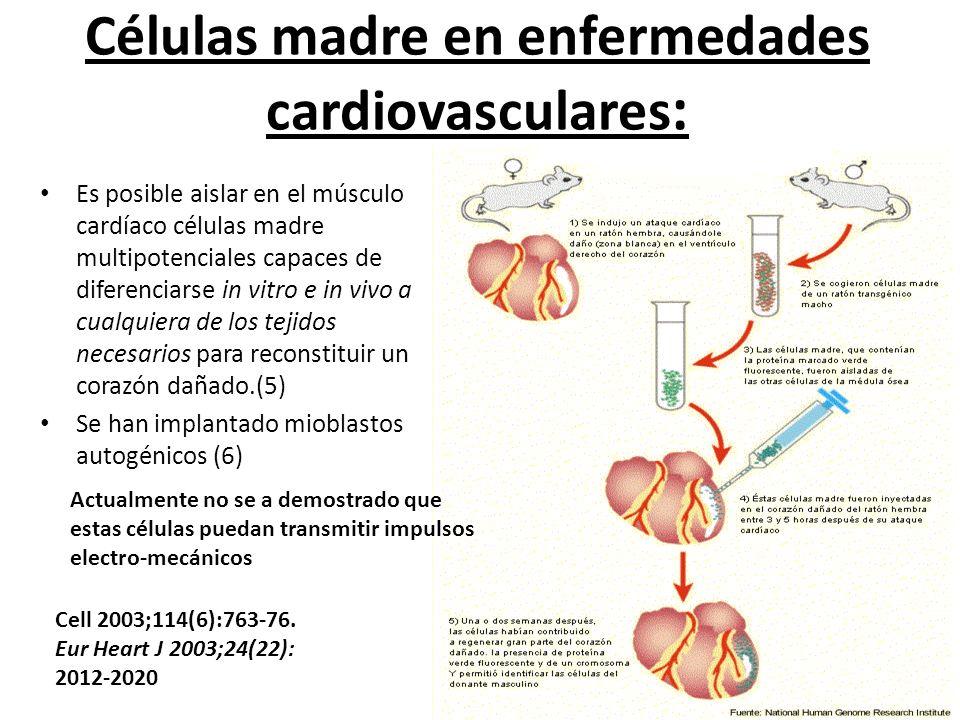 Células madre en enfermedades cardiovasculares: