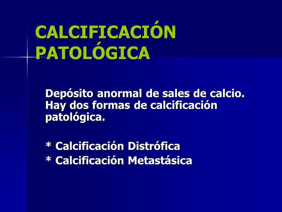 CALCIFICACIÓN PATOLÓGICA