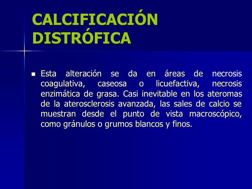 CALCIFICACIÓN DISTRÓFICA