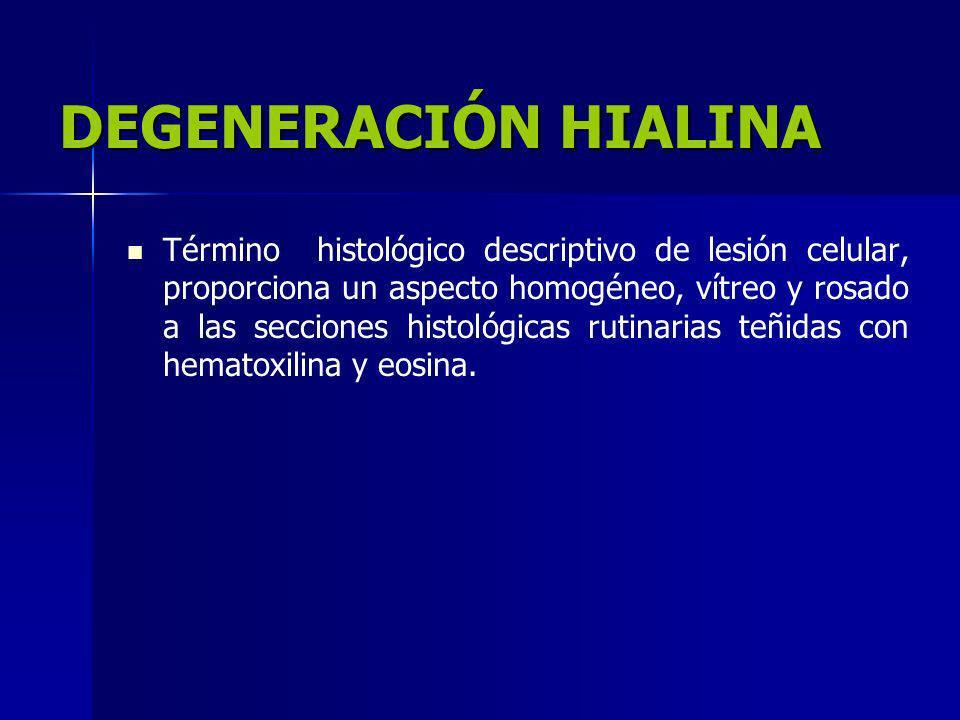 DEGENERACIÓN HIALINA