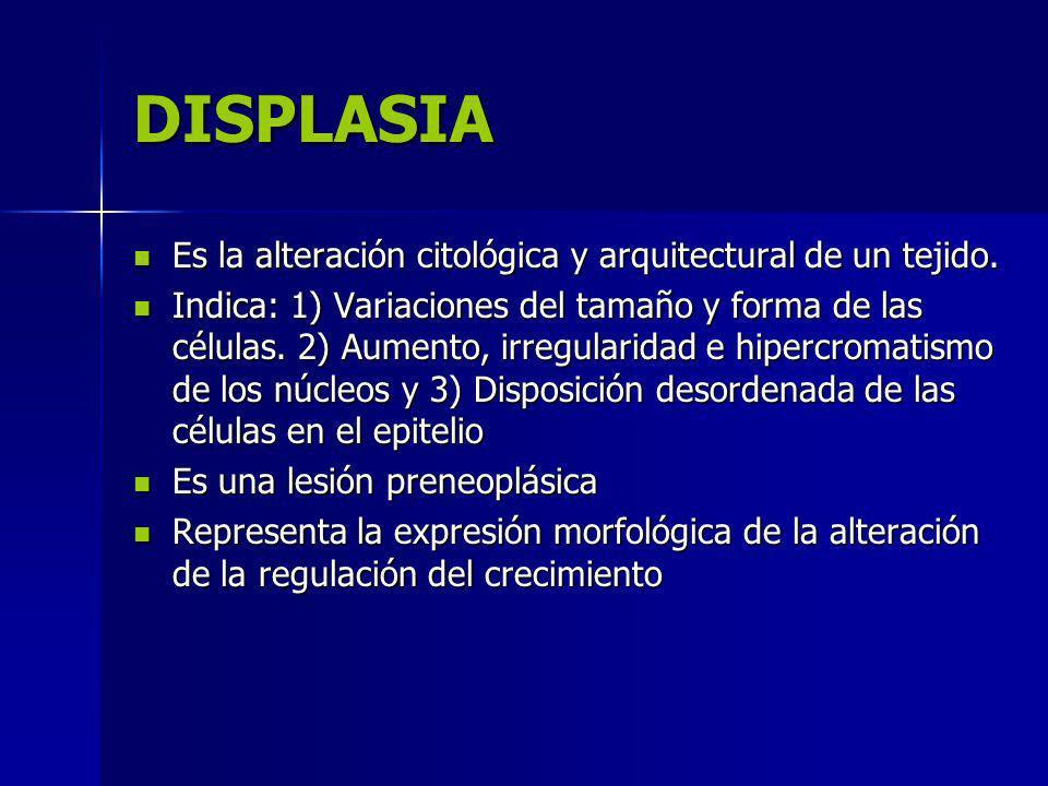 DISPLASIA Es la alteración citológica y arquitectural de un tejido.
