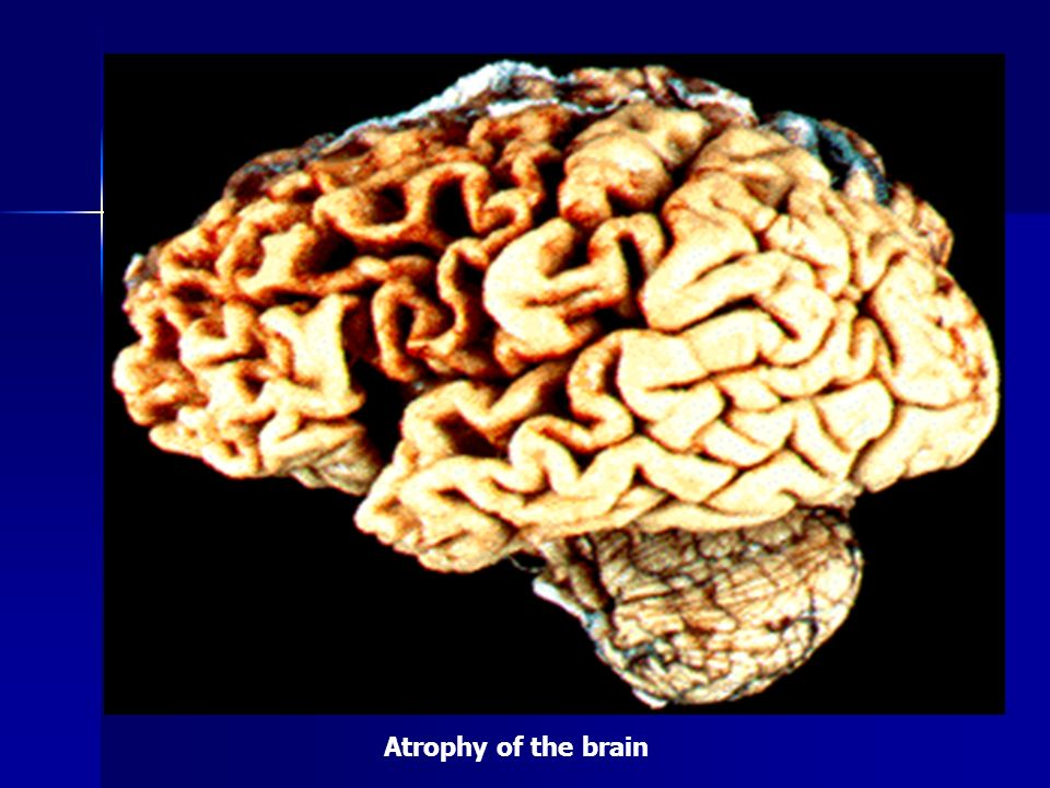 Atrophy of the brain