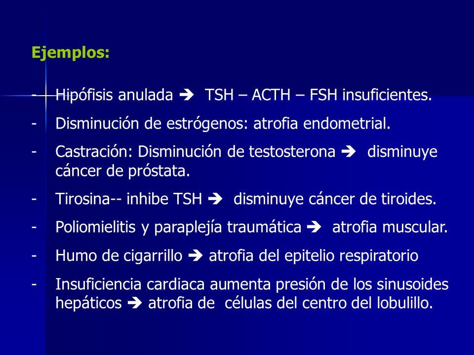 Ejemplos:Hipófisis anulada  TSH – ACTH – FSH insuficientes. Disminución de estrógenos: atrofia endometrial.