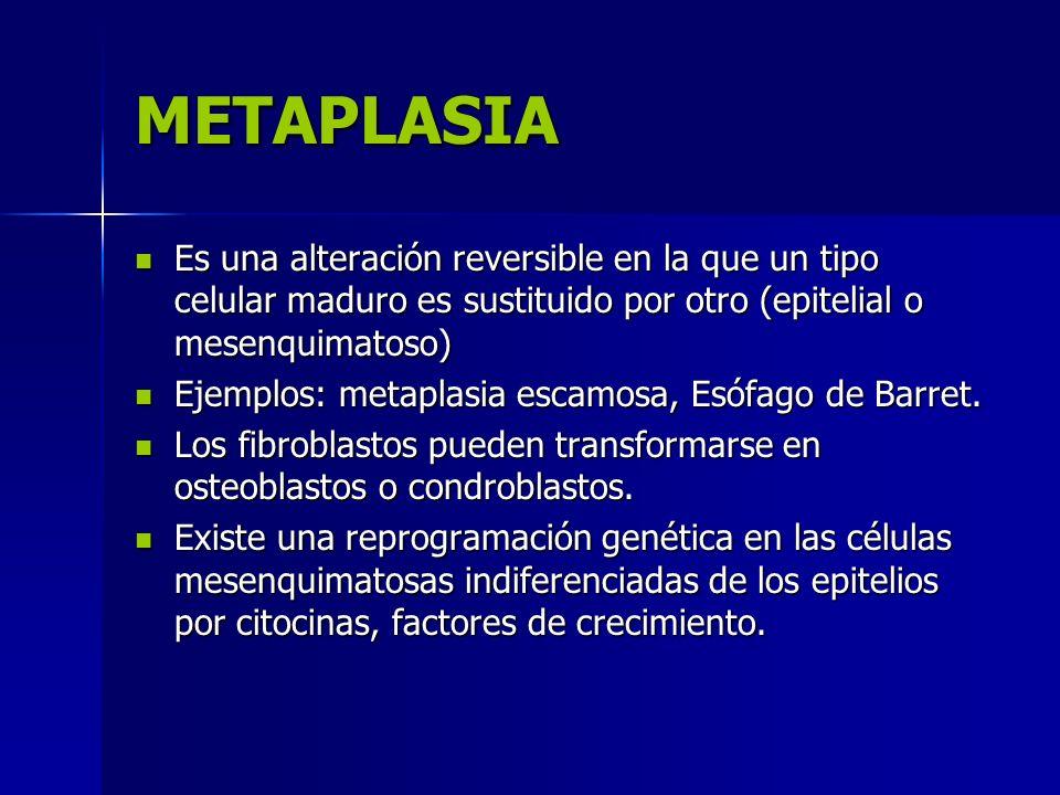 METAPLASIA Es una alteración reversible en la que un tipo celular maduro es sustituido por otro (epitelial o mesenquimatoso)