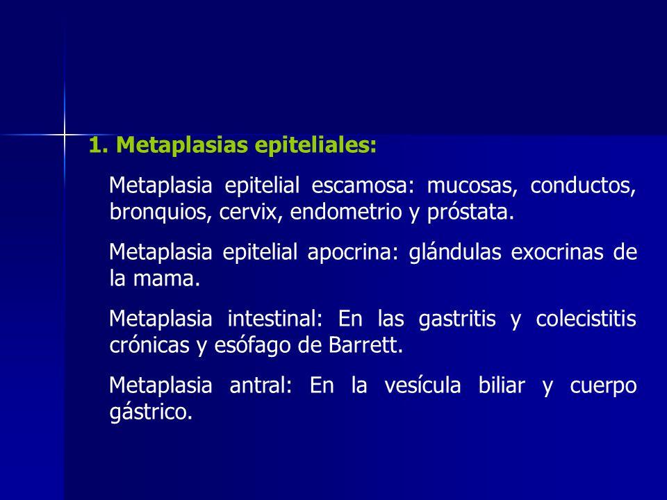 1. Metaplasias epiteliales: