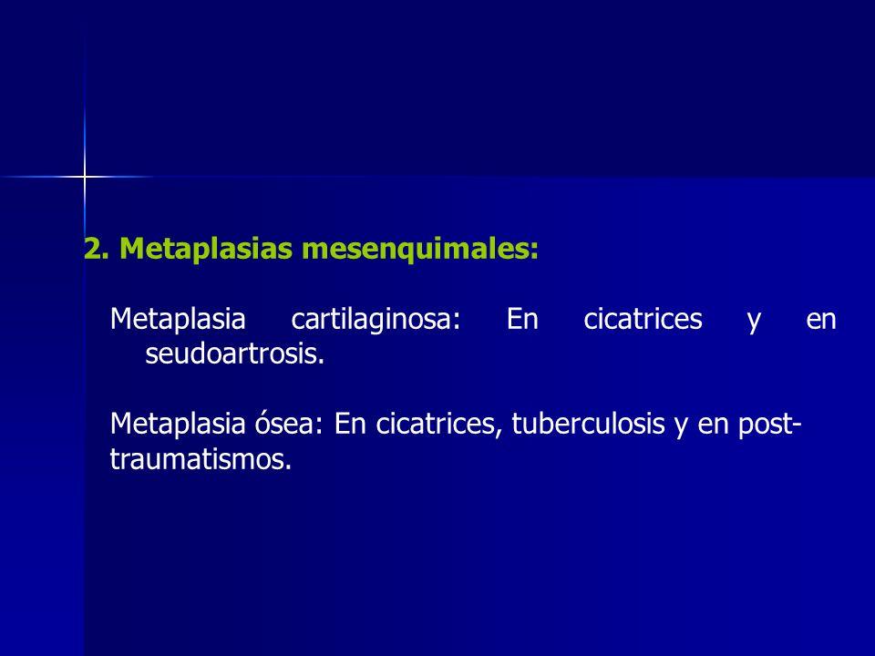 2. Metaplasias mesenquimales: