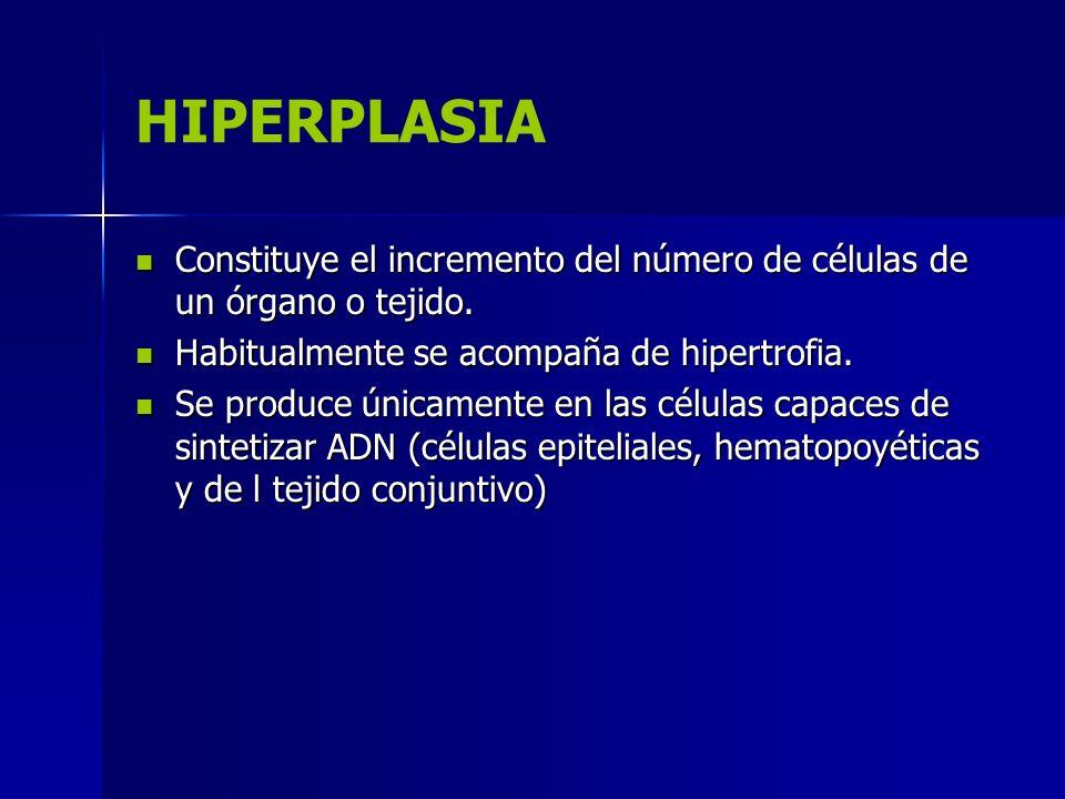 HIPERPLASIA Constituye el incremento del número de células de un órgano o tejido. Habitualmente se acompaña de hipertrofia.
