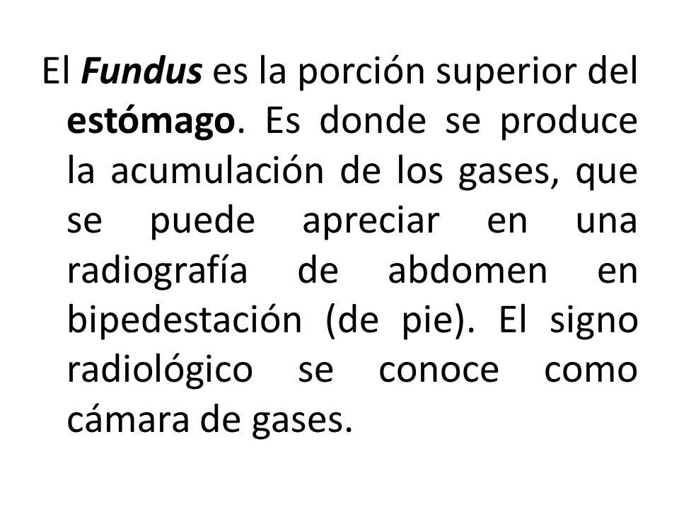 El Fundus es la porción superior del estómago