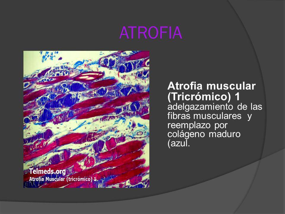 ATROFIAAtrofia muscular (Tricrómico) 1 adelgazamiento de las fibras musculares y reemplazo por colágeno maduro (azul.