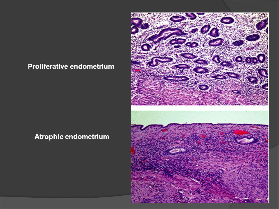 Proliferative endometrium