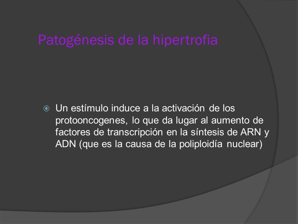Patogénesis de la hipertrofia