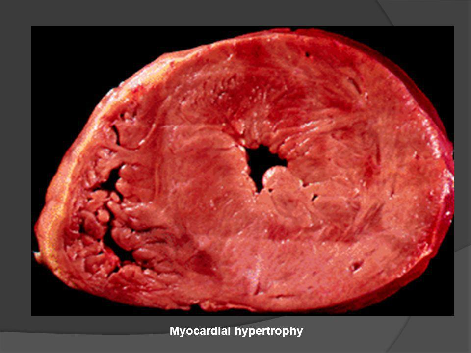 Myocardial hypertrophy