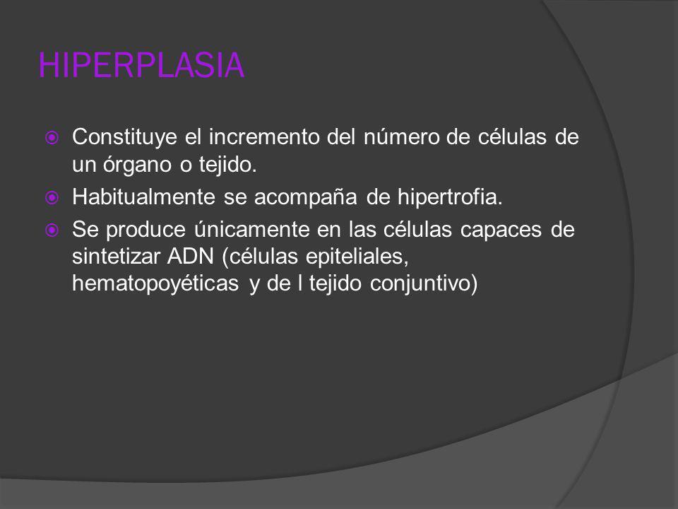 HIPERPLASIAConstituye el incremento del número de células de un órgano o tejido. Habitualmente se acompaña de hipertrofia.