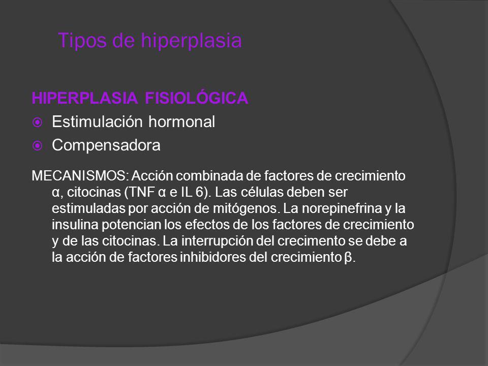 Tipos de hiperplasia HIPERPLASIA FISIOLÓGICA Estimulación hormonal