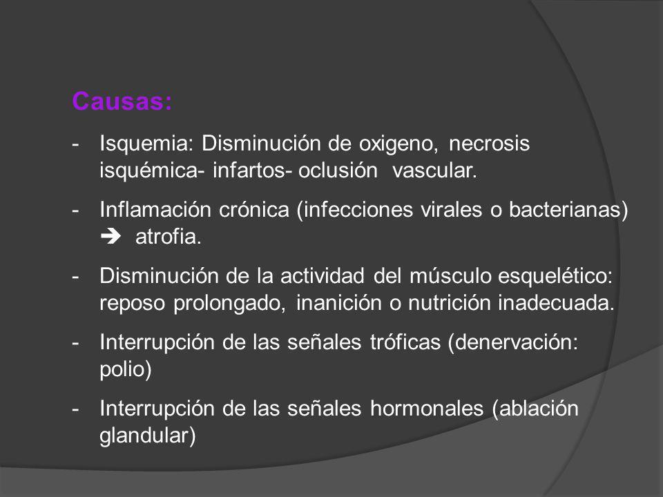 Causas: Isquemia: Disminución de oxigeno, necrosis isquémica- infartos- oclusión vascular.