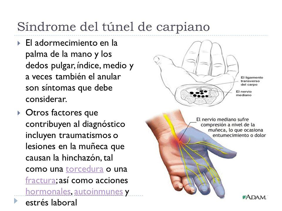 Síndrome del túnel de carpiano