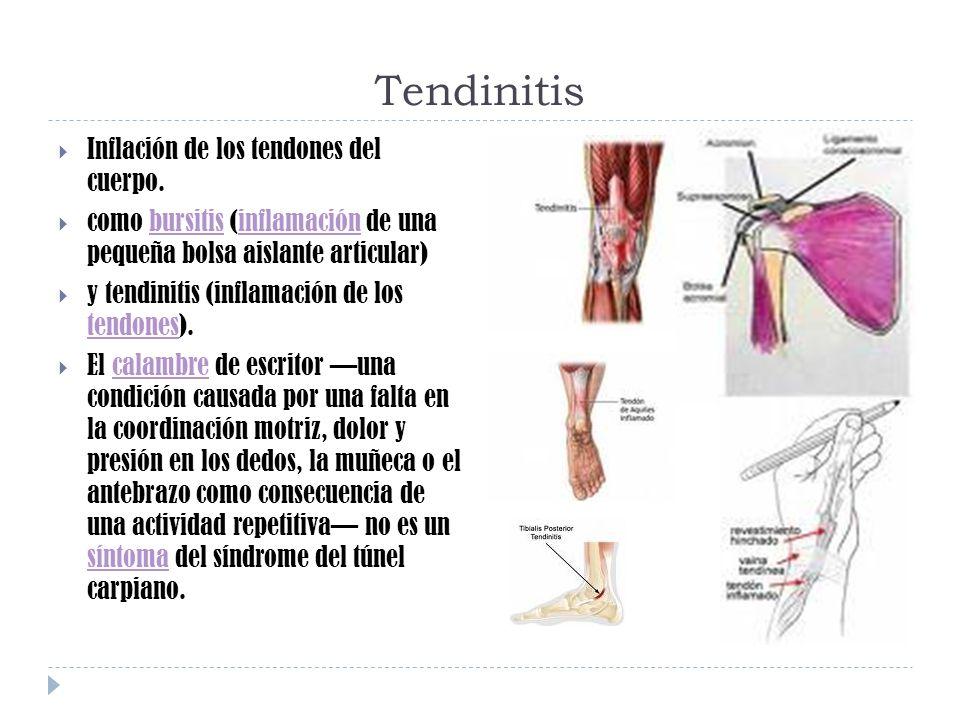 Tendinitis Inflación de los tendones del cuerpo.