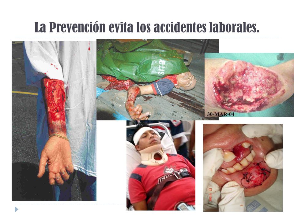 La Prevención evita los accidentes laborales.