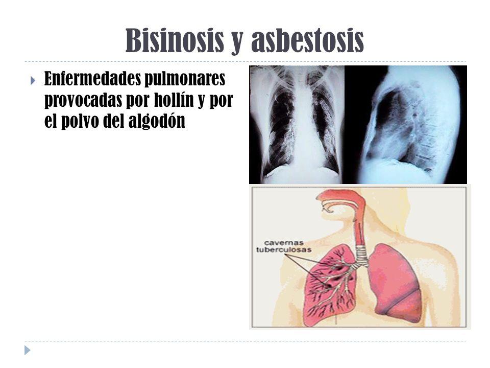 Bisinosis y asbestosis