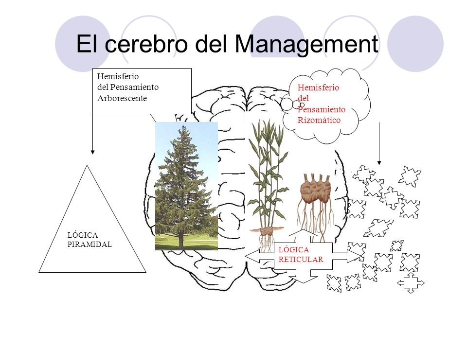 El cerebro del Management