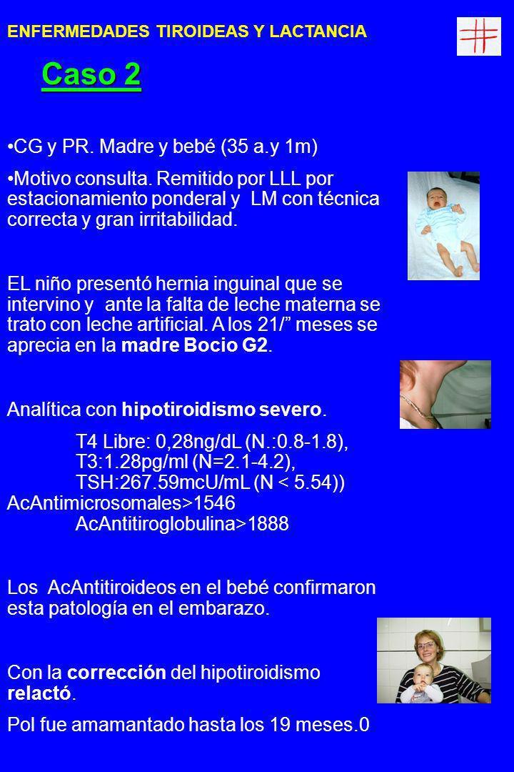 Caso 2 CG y PR. Madre y bebé (35 a.y 1m)