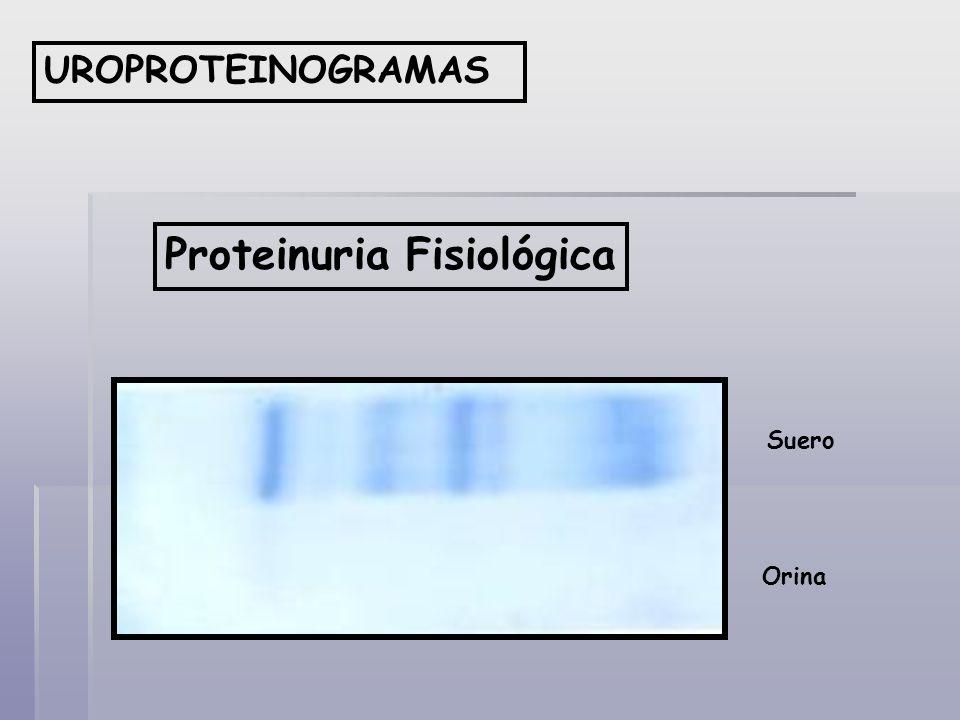 Proteinuria Fisiológica