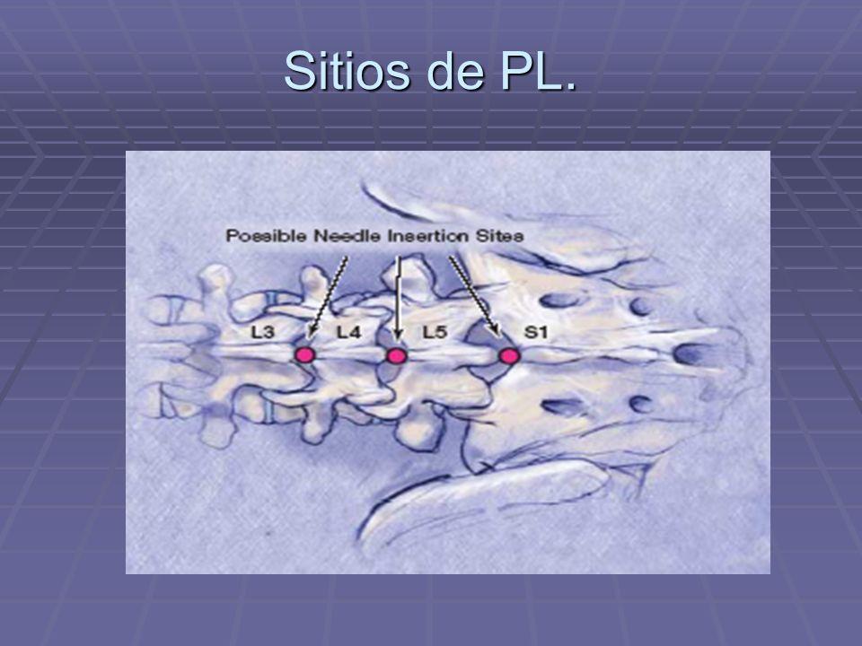 Sitios de PL.