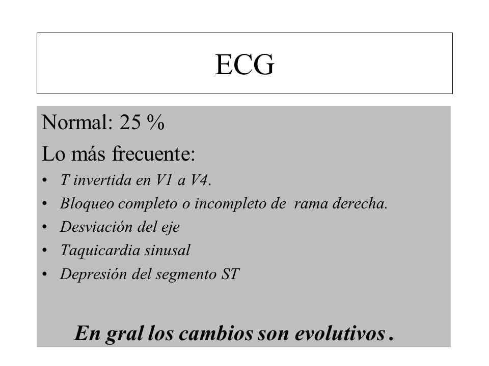 ECG Normal: 25 % Lo más frecuente: