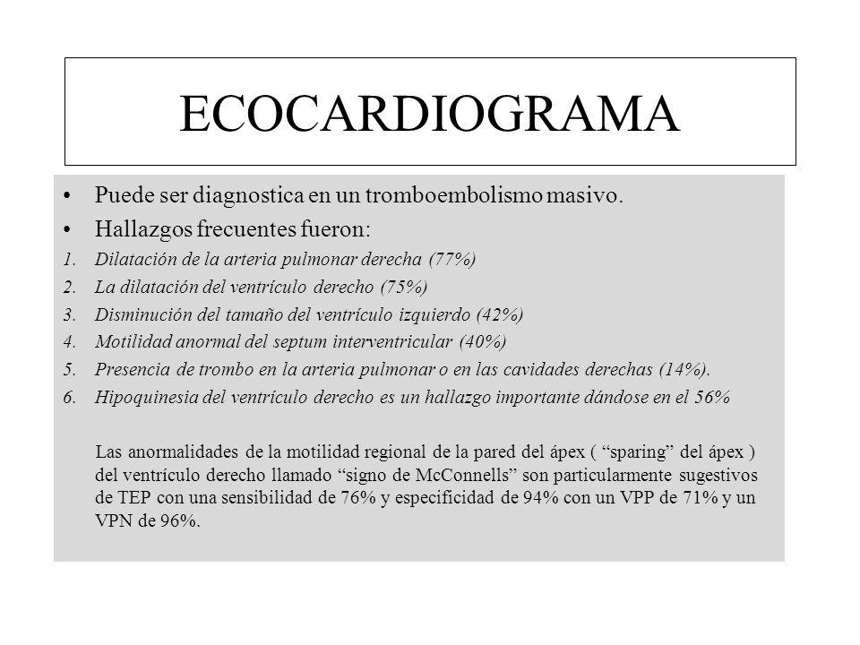 ECOCARDIOGRAMA Puede ser diagnostica en un tromboembolismo masivo.