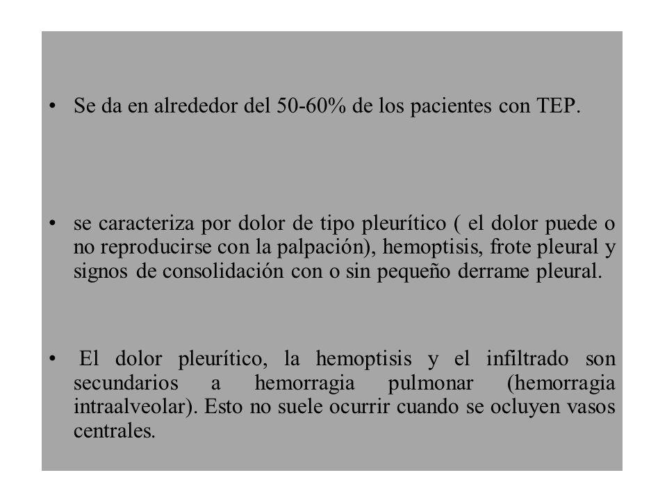 Se da en alrededor del 50-60% de los pacientes con TEP.