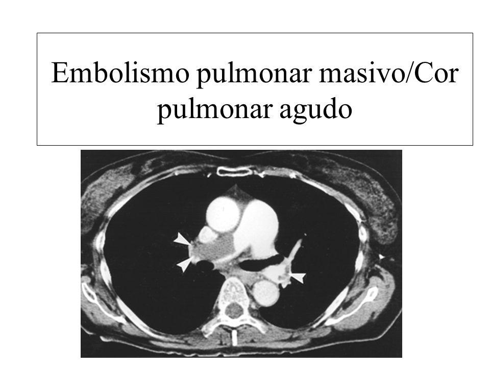Embolismo pulmonar masivo/Cor pulmonar agudo
