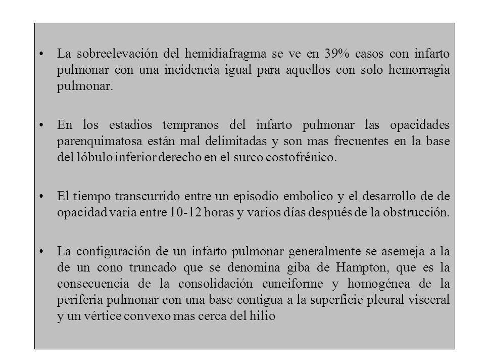 La sobreelevación del hemidiafragma se ve en 39% casos con infarto pulmonar con una incidencia igual para aquellos con solo hemorragia pulmonar.