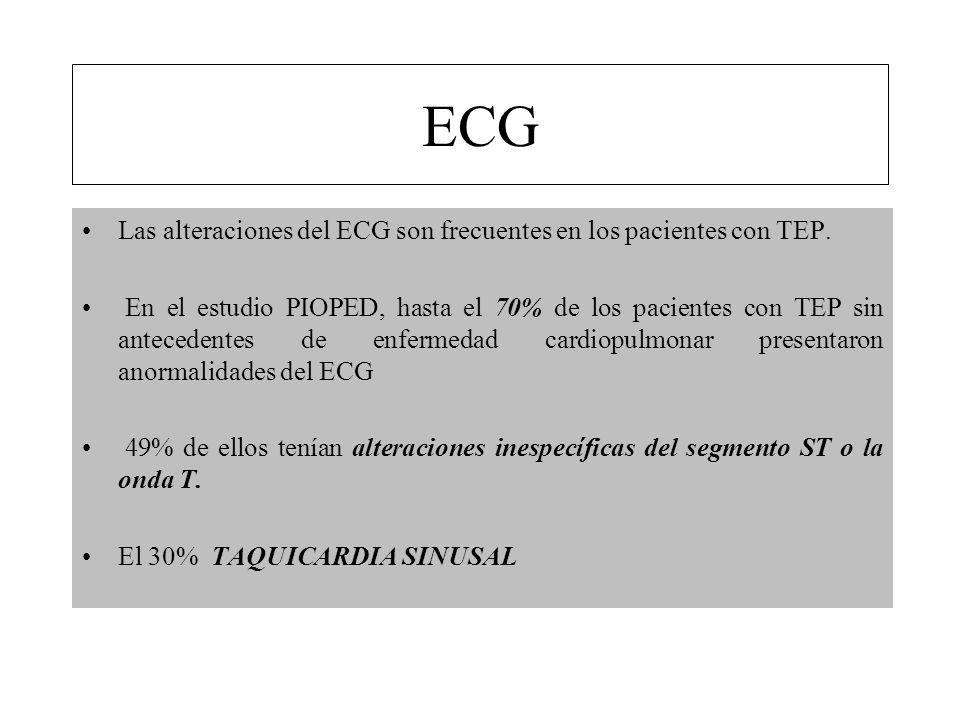 ECG Las alteraciones del ECG son frecuentes en los pacientes con TEP.