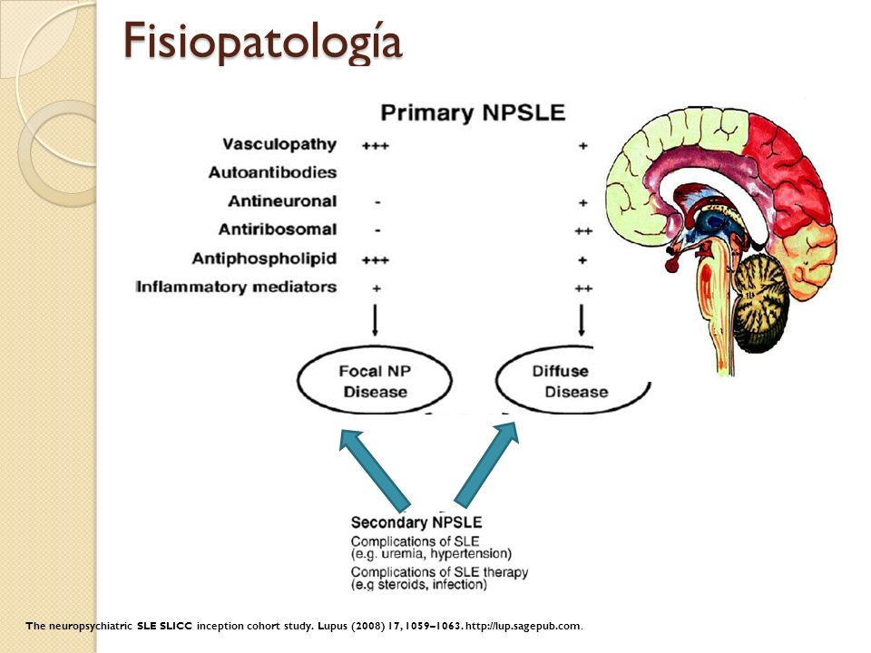 FisiopatologíaThe neuropsychiatric SLE SLICC inception cohort study.