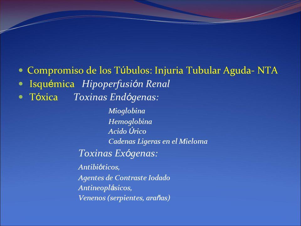 Compromiso de los Túbulos: Injuria Tubular Aguda- NTA