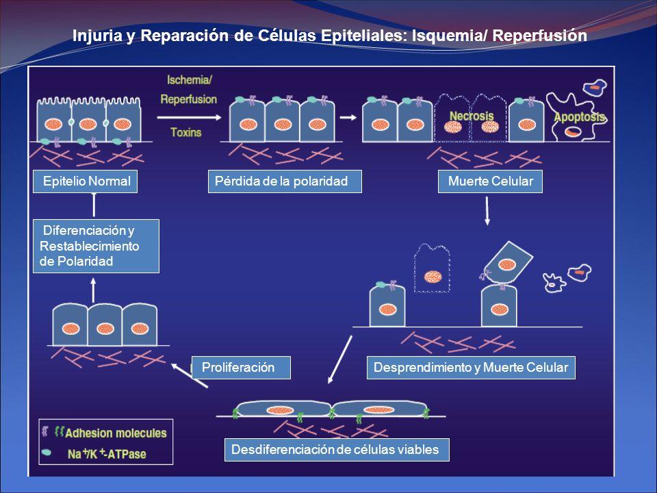 Injuria y Reparación de Células Epiteliales: Isquemia/ Reperfusión