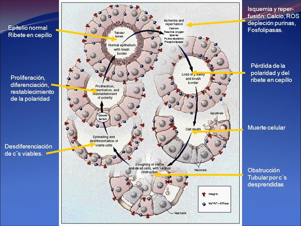 Isquemia y reper- fusión: Calcio, ROS. depleción purinas, Fosfolipasas. Epitelio normal. Ribete en cepillo.