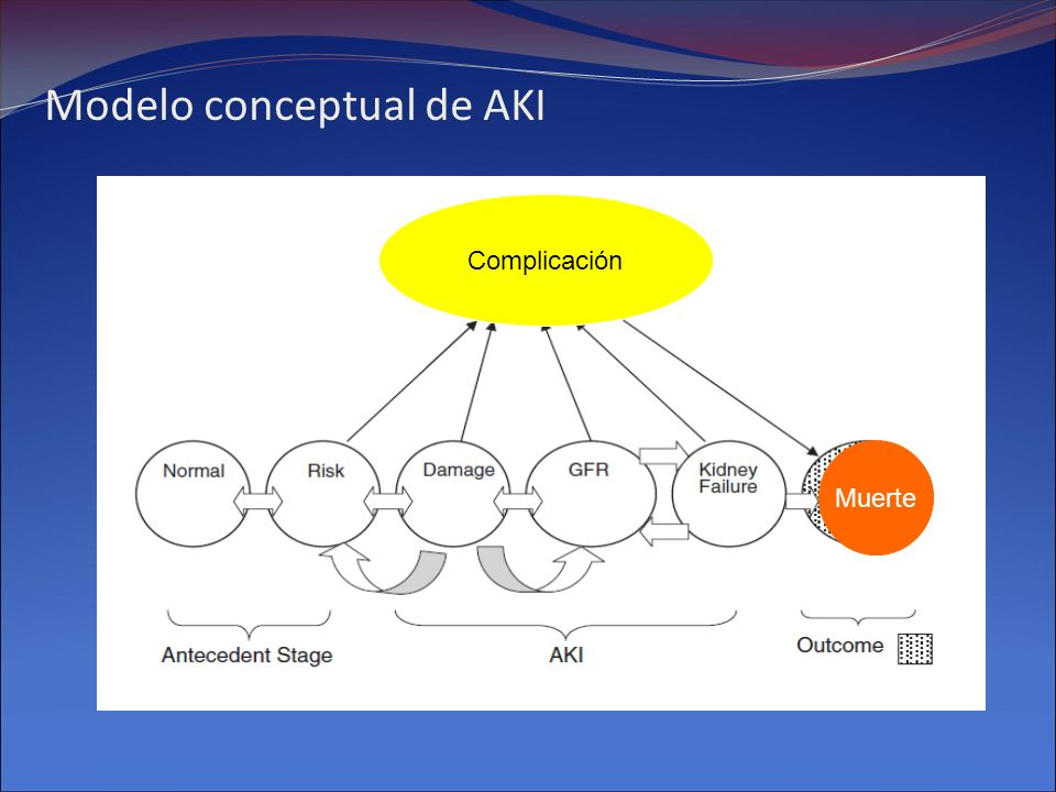Modelo conceptual de AKI