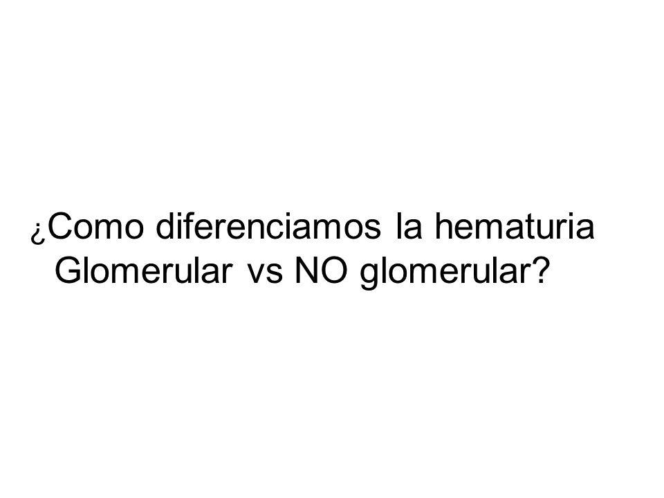 ¿Como diferenciamos la hematuria Glomerular vs NO glomerular