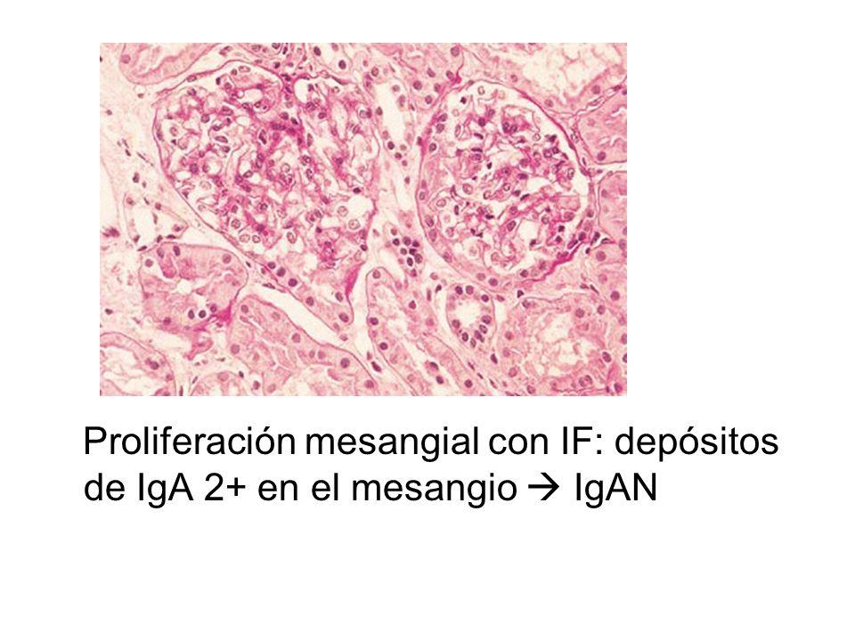 Proliferación mesangial con IF: depósitos de IgA 2+ en el mesangio  IgAN