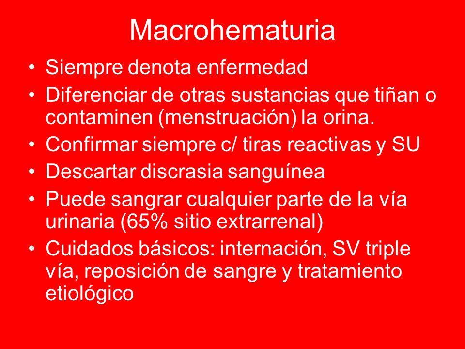 Macrohematuria Siempre denota enfermedad