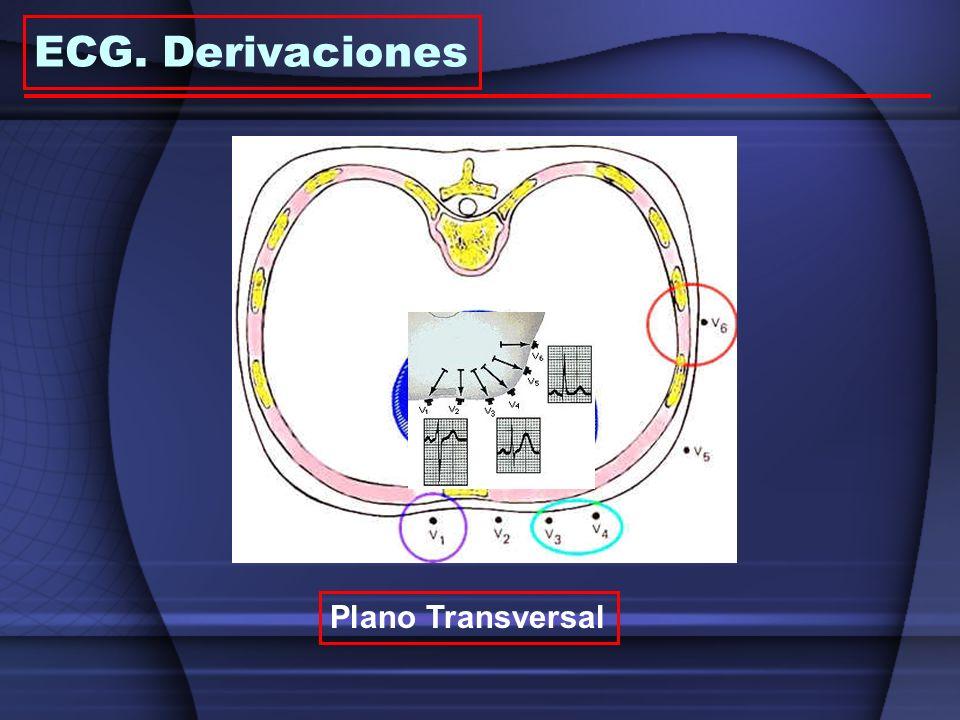 ECG. Derivaciones Plano Transversal