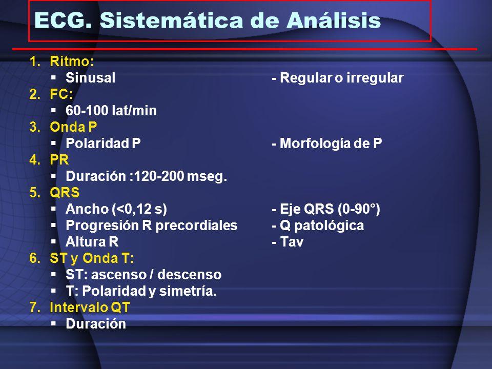 ECG. Sistemática de Análisis