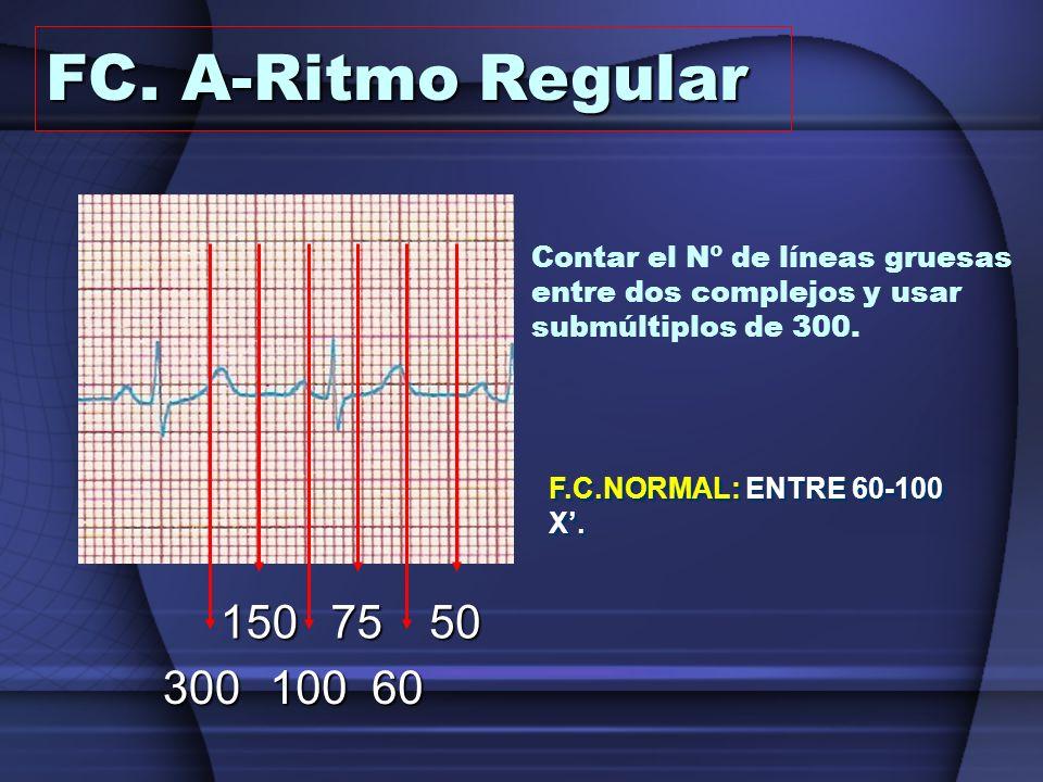 FC. A-Ritmo Regular Contar el Nº de líneas gruesas entre dos complejos y usar submúltiplos de 300. 300.