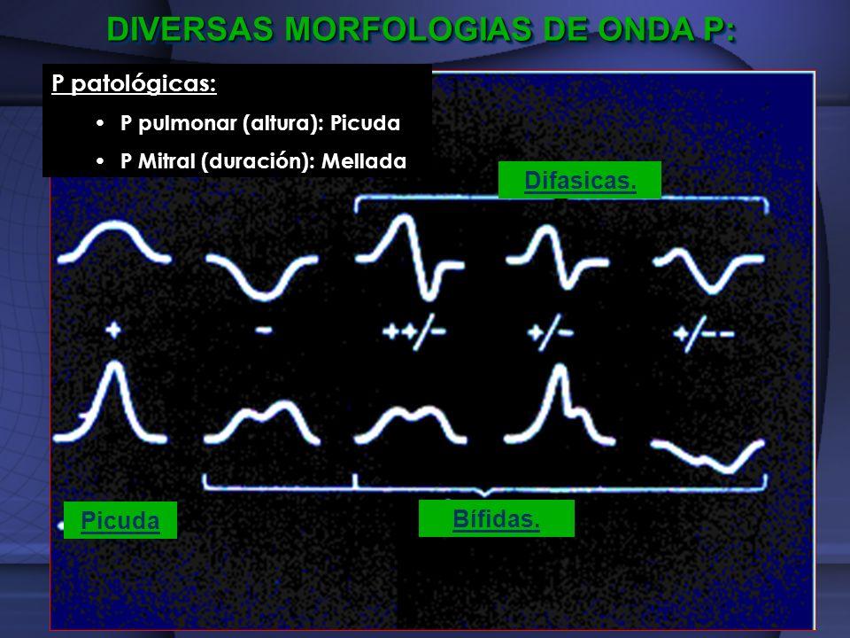 DIVERSAS MORFOLOGIAS DE ONDA P: